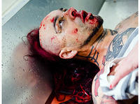 My Riot - Zdjęcia do klipu Botox